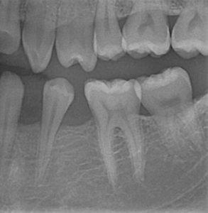 Kieferorthopädie vor dem Zahnersatz